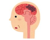 器質性認知症。普通の認知症と違うの?